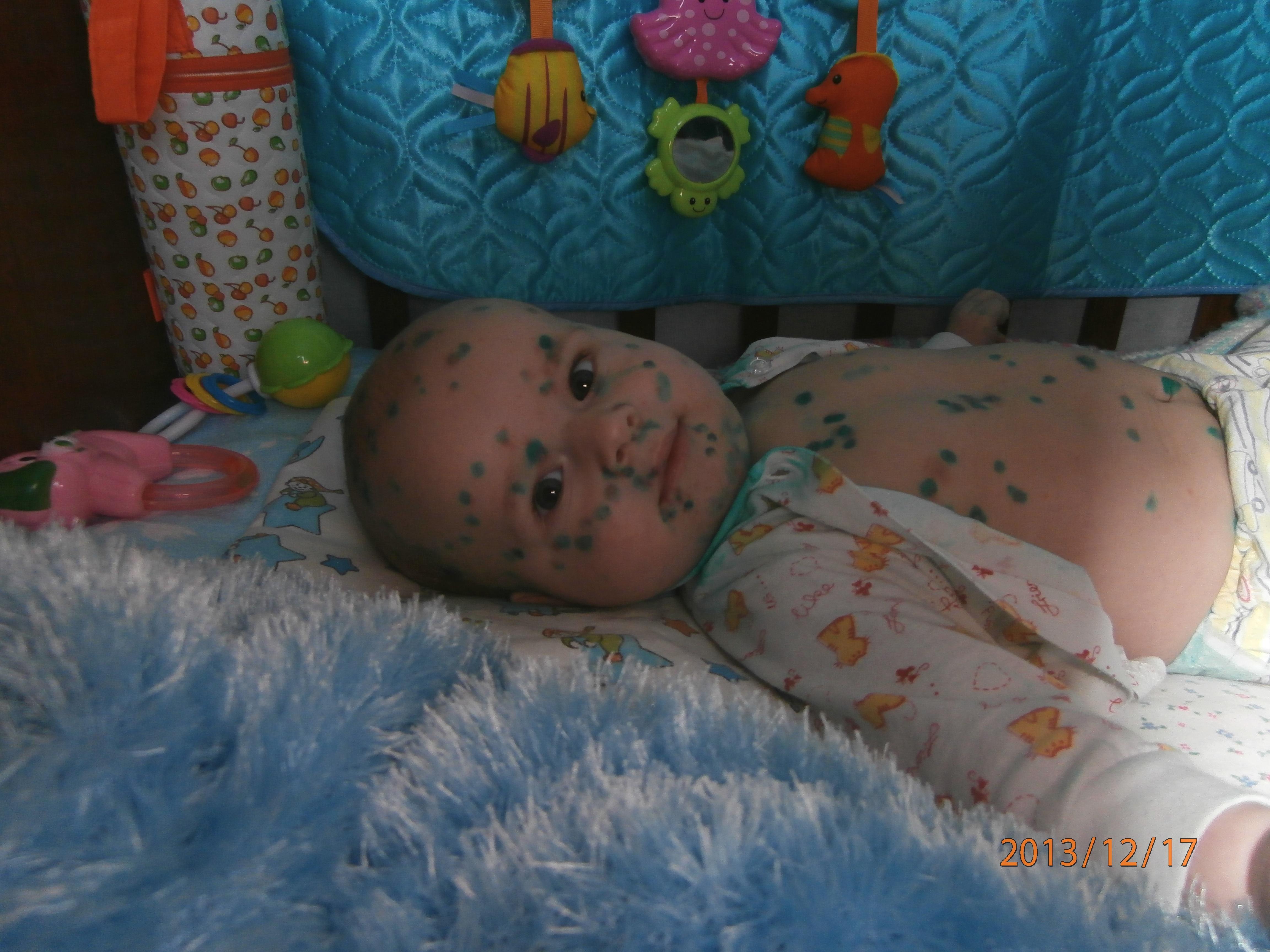 Ребёнок заболел ветрянкой а мама беременна 17