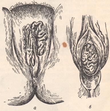 Тромбофлебит угловой вены лечение
