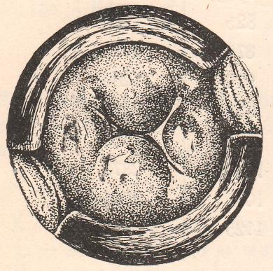 Осмотр влагалищной части шейки матки с помощью зеркала (Штеккель). Шейка рожавшей с атипично расположенными разрывами.