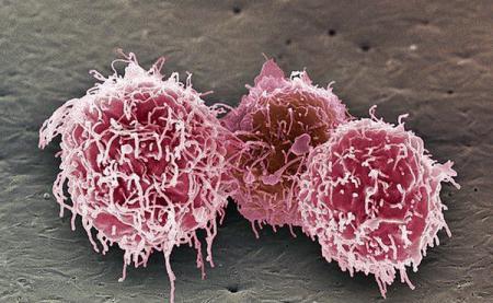 Новый подход в лечении онкологических заболеваний